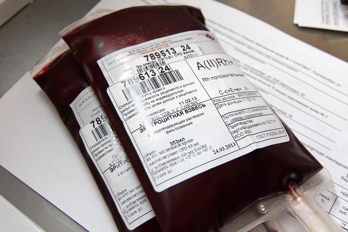 Жителя Екатеринбурга заразили ВИЧ при переливании крови