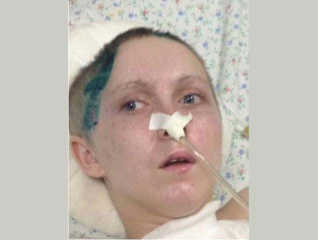 Нашлись родственники избитой грабителями на Менделеева девушки