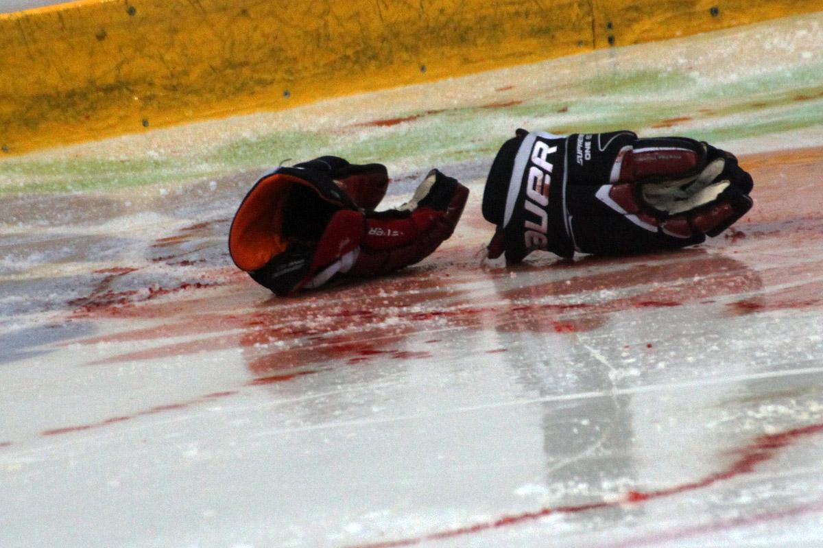 Хоккеист «Автомобилиста» потерял пол-литра крови из-за травмы